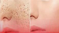 Comment Resserrer Les Pores De Peau Du Visage De Fa 231 On