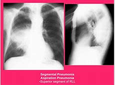 chest x ray showing pneumonia