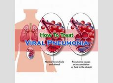 treatment of viral pneumonia