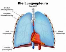 rippenfellentzündung schmerzen beim liegen bilder und suchen lungenfell