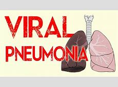 virus that causes pneumonia