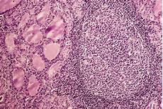 hashimoto thyreoiditis hashimoto thyroiditis pathology student