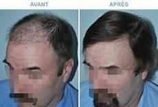 Greffes De Cheveux Le Guide Complet