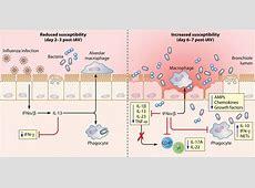 viral pneumonia wikipedia