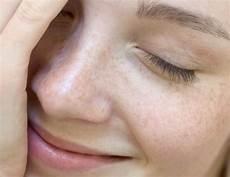 was hilft gegen gro 223 e poren tipps f 252 r reine haut