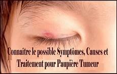 tumeur derrière l oeil conna 238 tre le possible sympt 244 mes causes et traitement pour paupi 232 re tumeur