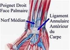 Douleur Poignet Droit Du Canal Carpien Chir Ortho