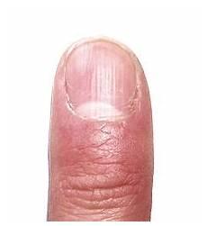 fingernägel längsrillen ursache schuppenflechte