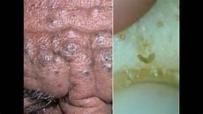 Die Fettigste Haut Der Welt Extremer Mitesser Befall