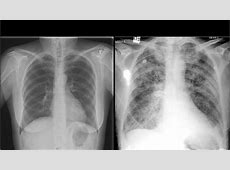 bronchitis x ray vs normal