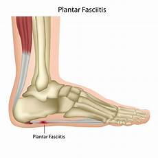 Haglund Ferse Hausmittel - soothe plantar fasciitis away with calf and
