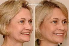 exercises to correct overbite mouth and facial collapse plastic surgery overbite correction face change