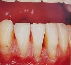 dents qui se déchaussent photos dechaussement dentaire d origine traumatique cabinet