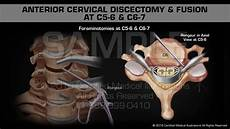 Anterior Cervical Discectomy Fusion At C5 6 C6 7