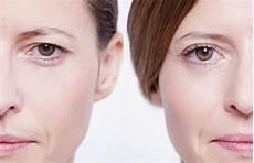 schlupflider kashieren ohne op die besten make up tricks