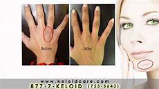 keloid care commercial ad youtube