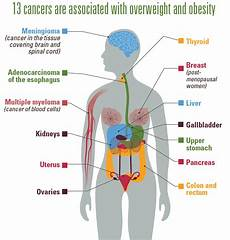 cancer and obesity vitalsigns cdc