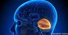 Hirntumor Symptome Auge - medulloblastom ursachen symptome behandlung netdoktor