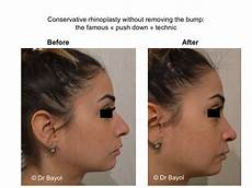 Rhinoplasty Switzerland Nose Surgery In Geneva And