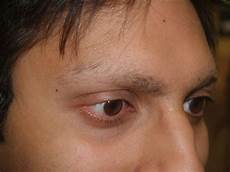eyebrow hair loss what to do about your thinning eyebrows image