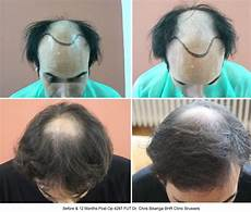 Greffe De Cheveux Photos