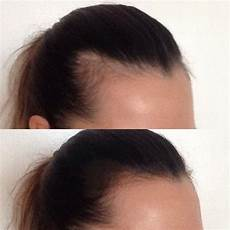Baby Hair Fall Out Grow Back