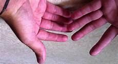 Comment Ne Pas Avoir Les Mains Moites Astuce Naturelle Pour Les Mains Moites