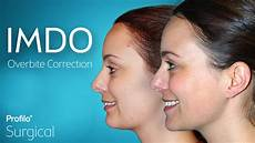 exercises to correct overbite imdo for adults 187 profilo 176 surgical