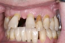 dents qui se déchaussent photos dents qui se chevauchent dents qui se d place 1 forum