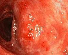 alimenti per colite ulcerosa colite ulcerosa quale dieta seguire dietando