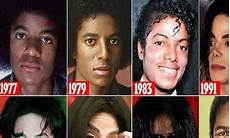 Michael Jackson Haut - story of michael jackson s skin how he destroyed his