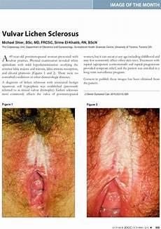 lichen sclerosus bilder vulvar lichen sclerosus journal of obstetrics and