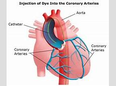 heart catheterization what to expect