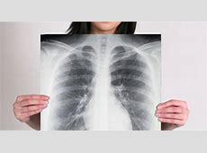 scar tissue on lungs coughing