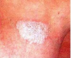 lichen sclerosus bilder symptoms of lichen sclerosus lichen relief