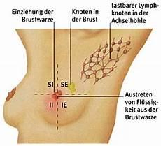 schmerzen in der brust frau doctorpark