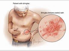 pneumonia hives
