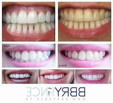 pate pour les dents kit blanchiment dentaire