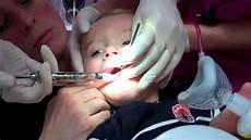 comment faire un bébé fr 233 notomie pour un b 233 b 233 de 18 mois sans pleurs au laser