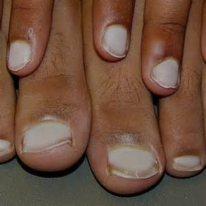 White Spots On Nail Beds by Lifestyle Osteopathy Singapore