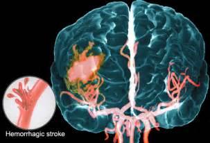 Brain Hemorrhage Stroke