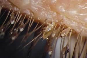 Pubic Lice - Symptoms, Causes, Treatment, Pictures ...