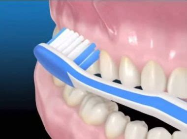 remove blood blister  gums  mouth  tooth