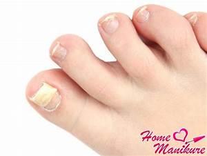 Изменение цвета ногтей на ногах грибок