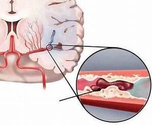 Артериальная гипертензия атеросклероз аорты лечение