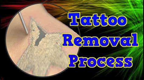 tattoo removal process home remedies  tattoo removal