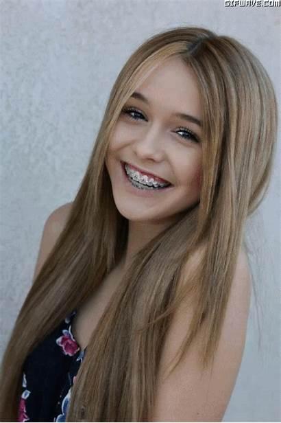 Braces Teen Tiny Orthodontic Reasons Still Three
