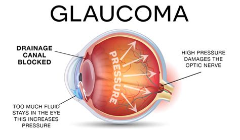 Glaucoma Treatment  Pgheyemeds. Dr Baronne Lafayette La New England Insurance. Best Equity Line Of Credit Rates. New York Film Academy Logo Muy Thai Training. Find Domain Name Registration. Negotiation Skills Training Dan Auto Repair. How Much Do Professional Movers Cost. Dedicated Web Hosting Services. Light To Frequency Converter Tsl235r