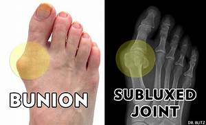 10 Most Common Bunion Surgery Questions