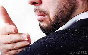 What Is Dandruff  What Are The Symptoms Of Dandruff